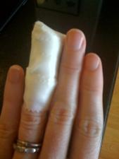 hurt finger